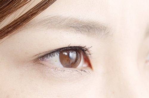 眼内レンズについて