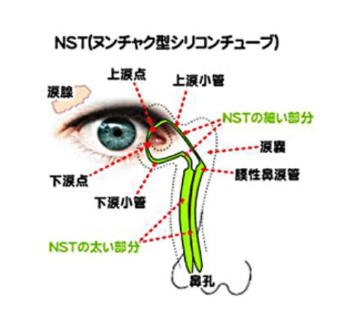 涙道内視鏡検査・シリコンチューブ留置